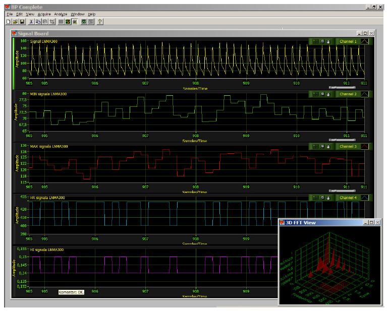 uno_lux_ns_kompanija_automatizacija_labview_national_instruments_projekti_realizacija_sistema_obrada_signala_automatika.rs.jpg