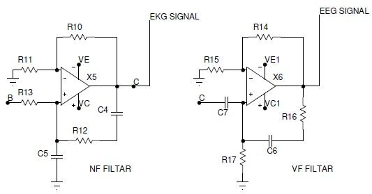 slika6_realizacija_univerzalnog_prenosivog_ekg_eeg_ureaja_elektronika_projekti_automatika.rs.jpg