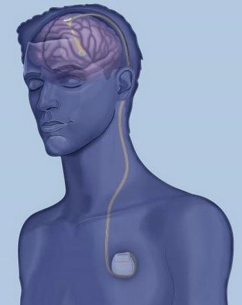 mozdani pejsmejker za alchajmerovu bolest glavna automatika rs